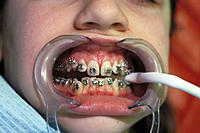 Teenager at dentist