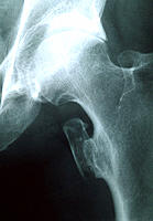 Abnormal bone growth. X-ray of the hip joint of a 60-year-old man suffering from the bone and muscle disorder myositis ossificans or heterotopic ossif...