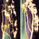 Varicose veins. Coloured angiograms (X-rays) of two views of a leg, showing the presence of varic- ose veins (yellow). Bone is green. These swollen, l...