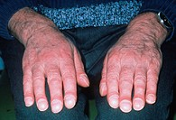 Clubbing. The hands of an elderly patient showing clubbing (acropachy) around the fingertips. The fingertips appear bulbous and shiny, with unusual- l...