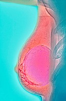 Breast implant calcification. Coloured mammogram (breast X-ray) of calcification around the borders of a breast implant (pink) in a woman´s breast (re...