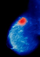 Breast cancer. Colored mammogram (x-ray) showing a cancerous tumor and breast tissue. Inside the breast is healthy fibrous tissue (blue) which serves ...