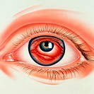´Conjunctivitis. Abstract illustration of an eye with conjunctivitis,  shown inside the iris of a normal eye. Conjunctivitis is inflammation of t...