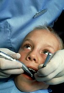 Dental drilling.  Child having  a tooth  drilled  by a dentist to treat tooth decay.   The dentist is holding a drill (at left)  and  the handle of a ...