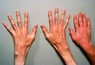 Photograph of the hands of a person suffering from Marfan´s syndrome, showing abnormally elongated & slender fingers. Anormal hand has been included i...