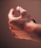 Acupuncture Needle Pierced in an Adult´s Hand