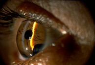 Open angle glaucoma (iridodialysis) showing a loosening of the iris.