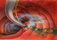 Gallstone removal from common duct by fiberoptic surgery.