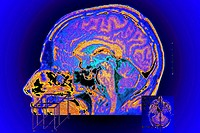 BRAIN, MRI<BR>The brain is the essential organ in the central nervous system. Brain death defines death in a human. The nerve mass contained in man´s ...