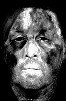 HORTON´S SYNDROME<BR>Horton´s syndrome, also known as temporal or giant cell arteritis. Fluorescein angiography of the face.
