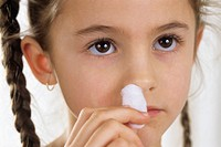 Nose bleed. Seven-year-old girl with a cotton wool swab against one nostril to stop a nose bleed.