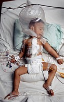Heart surgery patient. Baby in intensive care after open heart surgery. The hood over the baby´s head maintains an oxygen-rich environment to aid the ...