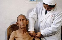 Man receiving acupuncture. Chengdu Hospital of Chinese Traditional medicine