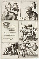 Illustration from 'Chirurgia curiosa, or, The newest and most curious observations and operations in the whole art of chirurgery' by Matthias Gottfrie...