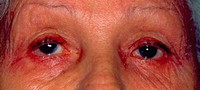 Ocular allergy: external view of a sixty-four-year-old woman showing ocular allergy to medication.