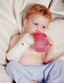 Broken arm. Two year old boy drinking from a plastic beaker, he has a plaster cast on his arm. A cast is used to immobilise a broken bone after it has...