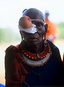 Eye surgery patient. Old woman before cataract surgery. Her eye has been injected with a paralysing agent prior to surgery, and the ball over her righ...