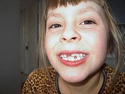 A seven-year-old girl baring her milk teeth  Sweden