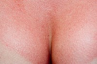 Close up of  woman tanning breast skin