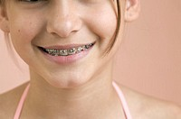 Smiling Girl Wearing Braces