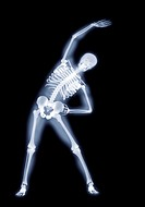 Side bend yoga position  Computer artwork based on an x-ray of a person performing a standing side bend