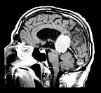 This sagital (from the side) contrast enhanced MRI image shows a large densely enhancing mass in the pineal region which is a meningioma. This is unco...