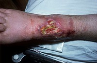 Pressure sore on a patient´s leg  This pressure sore decubitus ulcer resulted from the ankle being in a plaster cast  Constant pressure on an area of ...
