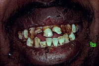 Closeup of man´s dirty teeth
