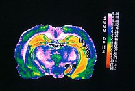 thermography of the brain