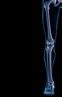 The bones of the lower limb