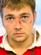 Bruised and cut rugby player