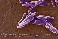 Scanning electron micrograph of Mycobacterium tuberculosis, the gram positive, obligate anaerobic bacterium that causes tuberculosis TB The bacteria a...