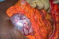 Close-up of surgery to remove an abdominal lymphoma from a Nigerian boy