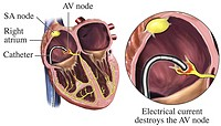 Illustration of the electrical destruction of the atrioventricular AV node during catheter ablation Shown are the catheter inserted into the right atr...