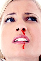 Woman with a nosebleed (thumbnail)