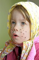 Girl with spots on her face