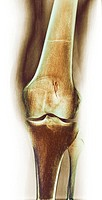 Arthritic knee  Coloured X-ray of the knee of a patient with rheumatoid arthritis  At top is the femur thigh bone, at bottom is the tibia shinbone, wi...