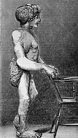 Joseph Merrick, The Elephant Man 1862-1890  Historical artwork of Joseph Merrick, a British man called The Elephant Man for his disfigured face and li...