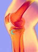 Osteoarthritis  Coloured X-ray of the knee of a 61 year old man, showing signs of osteoarthritis and the fixation staple blue of a previous surgical p...