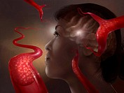 This illustration depicts a woman with clots in the vessels of her brain. Blood clots in the brain interrupt the supply of blood, and brain cells beco...