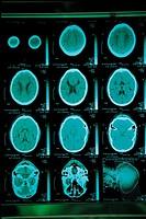 MRIMagnetic Resonance Imaging