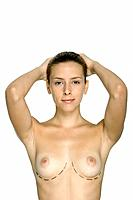 Nude woman with plastic surgery markings under breasts, hands on head, smiling at camera