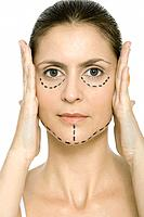 Woman with plastic surgery markings on face, holding face in hands, looking at camera
