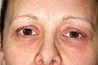 Eczema affecting the skin around a 36_year_old woman´s eyes. This is known as periorbital eczema. Eczema is an inflammation of the skin accompanied by...