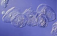 Epithelzellen des Mundes