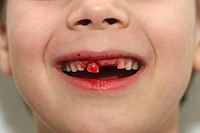 LOSING MILK TEETH Model. 7_year_old boy losing a baby tooth.