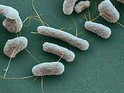 Escherichia coli bacteria, coloured scanning electron micrograph SEM. E. coli bacteria are a normal part of the intestinal flora in humans and other a...
