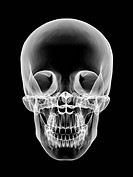 Human skull, X_ray artwork