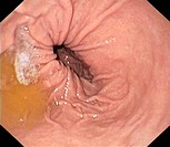 Hiatus hernia. Endoscope view of the inside of a hiatus hernia, the protrusion of part of the stomach into the thorax through the hole in the diaphrag...