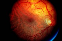Ophthalmoscope image of Age_related Macular Degeneration ARMD.